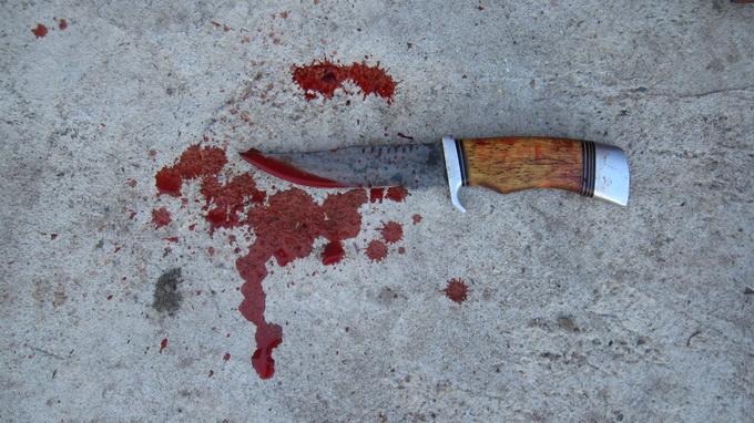 Изрезали до крови продавщицу ради 3 тыс. рублей юные грабители
