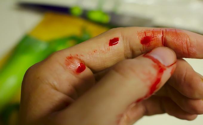 Работа Смоленске рука в крови фото Предложений Цен Провайдеров
